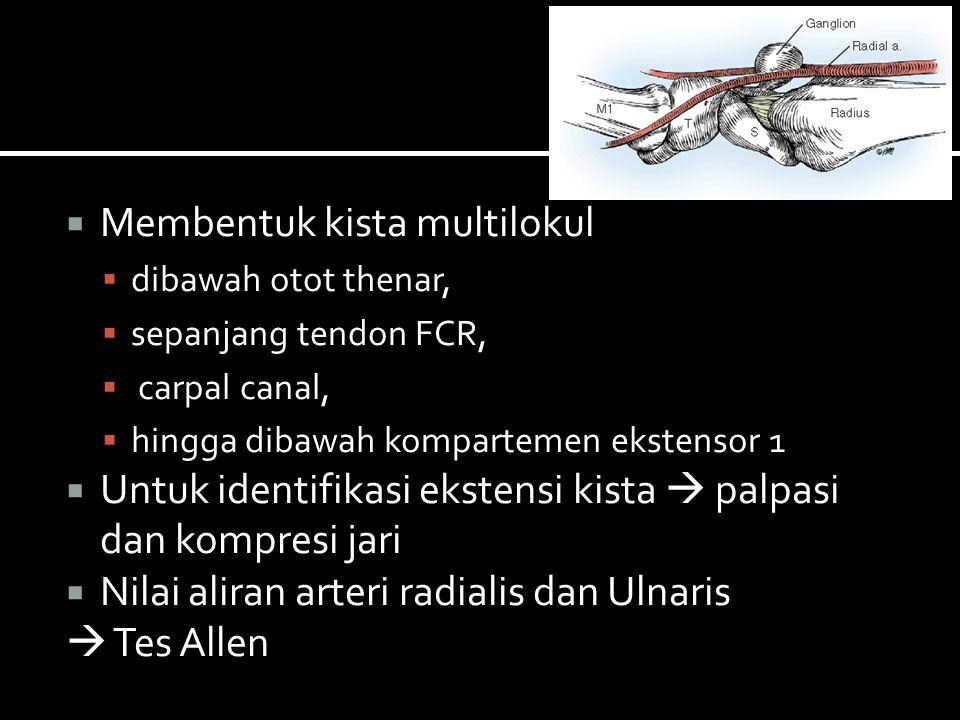  Jenis ganglion ketiga tersering (10-20%)  dari Ligamen annular Proksimal (A1 Pulley) Flexor tendon sheath  Massa kecil, padat dibawah MP flexion crease  Menempel pada tendon sheath Wolfe, S.W., Hotchkiss, R.N., Pederson W.C., Kozin S.H.