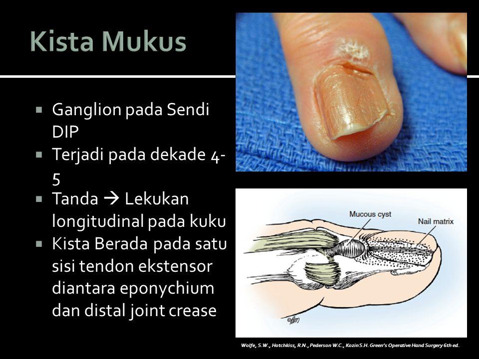  Ganglion pada Sendi DIP  Terjadi pada dekade 4- 5  Tanda  Lekukan longitudinal pada kuku  Kista Berada pada satu sisi tendon ekstensor diantara eponychium dan distal joint crease Wolfe, S.W., Hotchkiss, R.N., Pederson W.C., Kozin S.H.