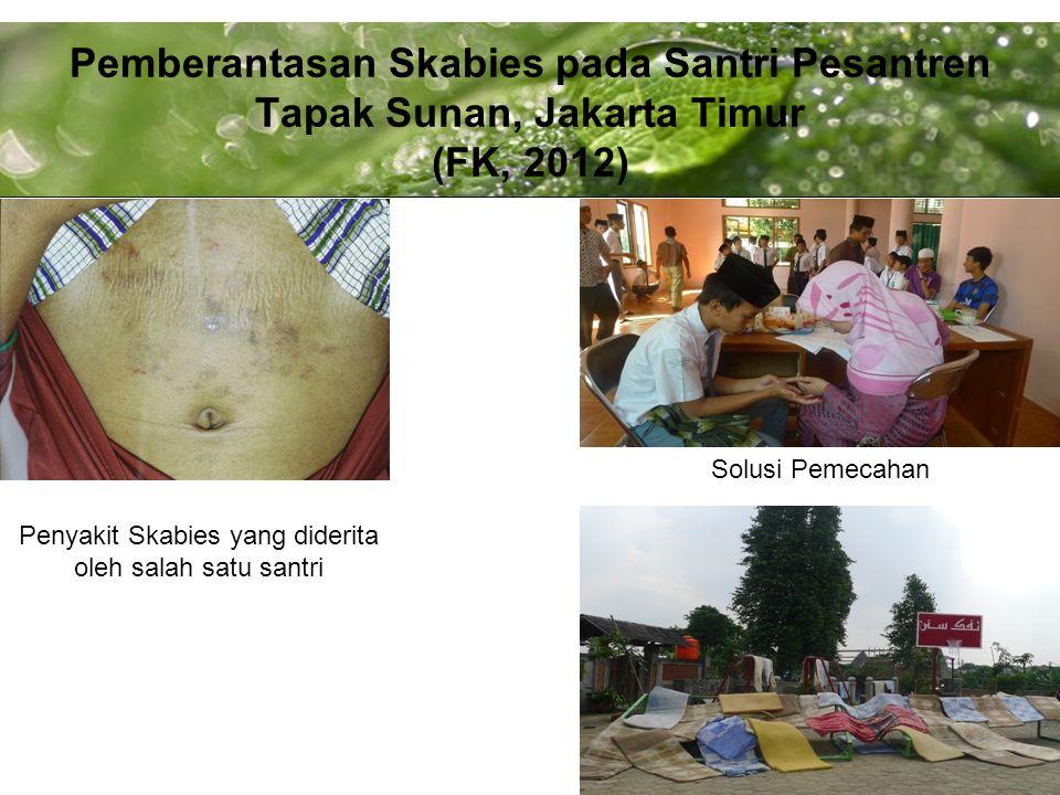 Powerpoint Templates Page 15 Pemberantasan Skabies pada Santri Pesantren Tapak Sunan, Jakarta Timur (FK, 2012) Penyakit Skabies yang diderita oleh salah satu santri Solusi Pemecahan
