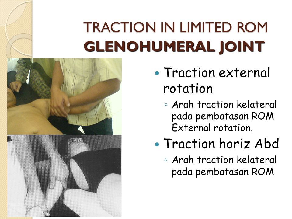 TRACTION IN LIMITED ROM GLENOHUMERAL JOINT Traction external rotation ◦ Arah traction kelateral pada pembatasan ROM External rotation. Traction horiz