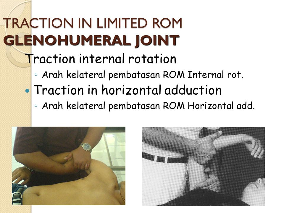 TRACTION IN LIMITED ROM GLENOHUMERAL JOINT Traction internal rotation ◦ Arah kelateral pembatasan ROM Internal rot. Traction in horizontal adduction ◦