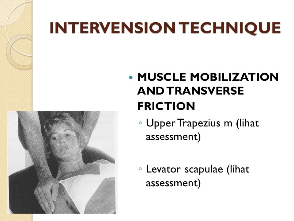 JOINT MOBILIZATION ACROMIOCLAVICULAR JOINT ◦ Lateral traction  MLPP: utk awal mobilisasi atau aktualitas tinggi  Permbatasan retraction: Stretching yg membatasi retraction
