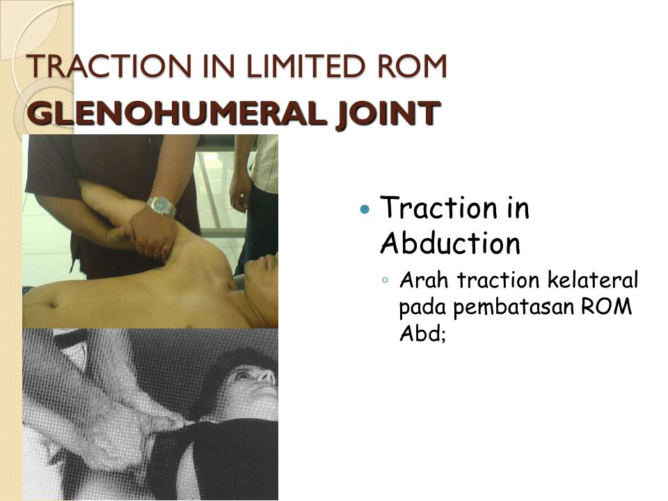 TRACTION IN LIMITED ROM GLENOHUMERAL JOINT Traction in Abduction ◦ Arah traction kelateral pada pembatasan ROM Abd ;