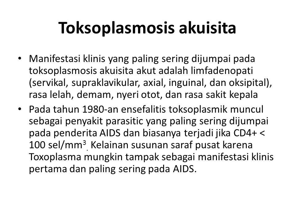 Toksoplasmosis akuisita Manifestasi klinis yang paling sering dijumpai pada toksoplasmosis akuisita akut adalah limfadenopati (servikal, supraklavikul