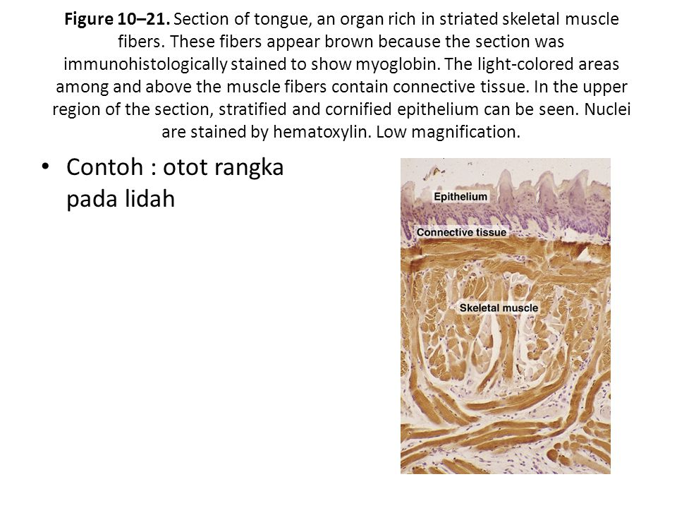 Figure 10–21.Section of tongue, an organ rich in striated skeletal muscle fibers.
