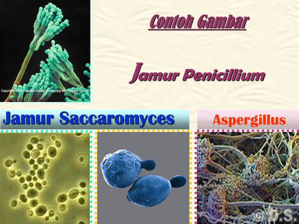 Materi Pokok Rhizopos oryzae. Saccharonyces crevisiae Aspergillus wenntii Aspergilus oryzae Penicilium notatum Jamur yang menguntungkan manusia :