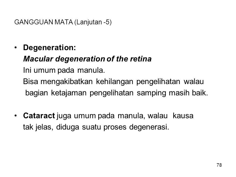 78 GANGGUAN MATA (Lanjutan -5) Degeneration: Macular degeneration of the retina Ini umum pada manula. Bisa mengakibatkan kehilangan pengelihatan walau