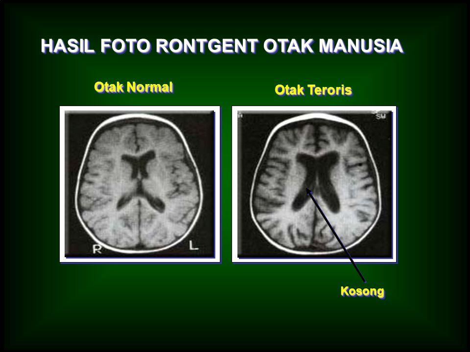 HASIL FOTO RONTGENT OTAK MANUSIA Otak Normal Otak Teroris KosongKosong