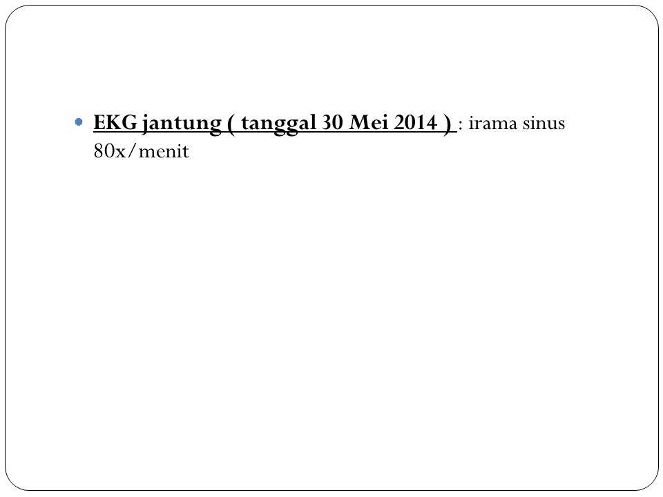 EKG jantung ( tanggal 30 Mei 2014 ) : irama sinus 80x/menit
