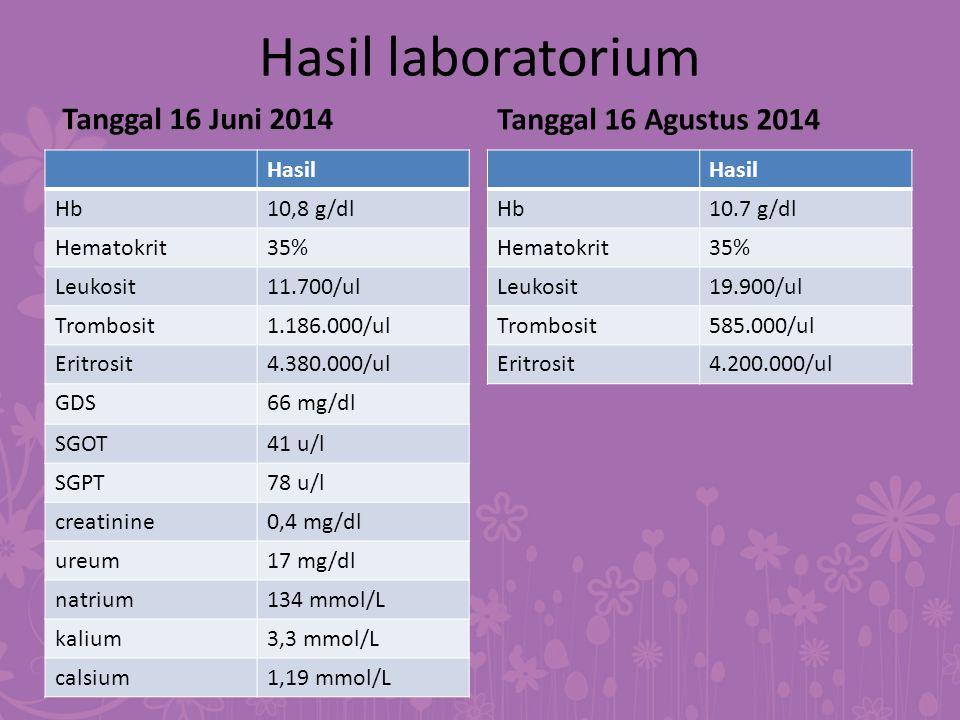 Hasil laboratorium Tanggal 16 Juni 2014 Hasil Hb10,8 g/dl Hematokrit35% Leukosit11.700/ul Trombosit1.186.000/ul Eritrosit4.380.000/ul GDS66 mg/dl SGOT