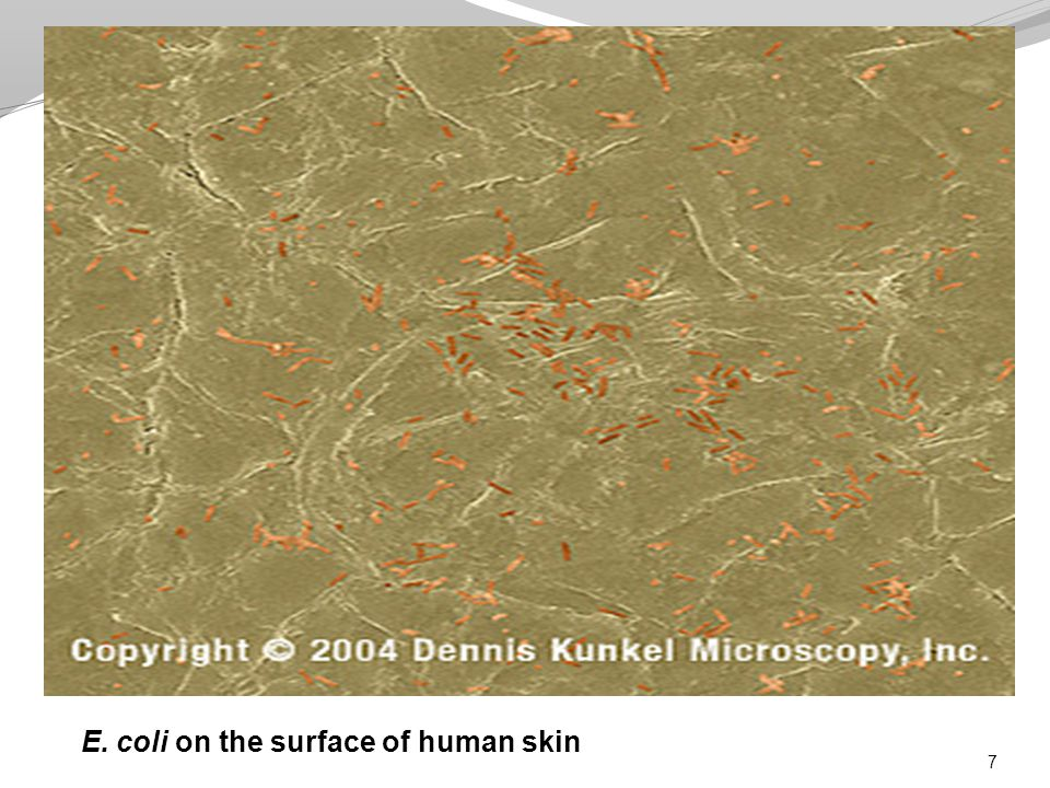 7 E. coli on the surface of human skin