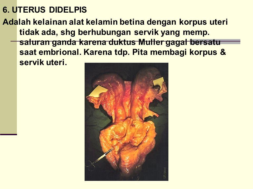 6. UTERUS DIDELPIS Adalah kelainan alat kelamin betina dengan korpus uteri tidak ada, shg berhubungan servik yang memp. saluran ganda karena duktus Mu