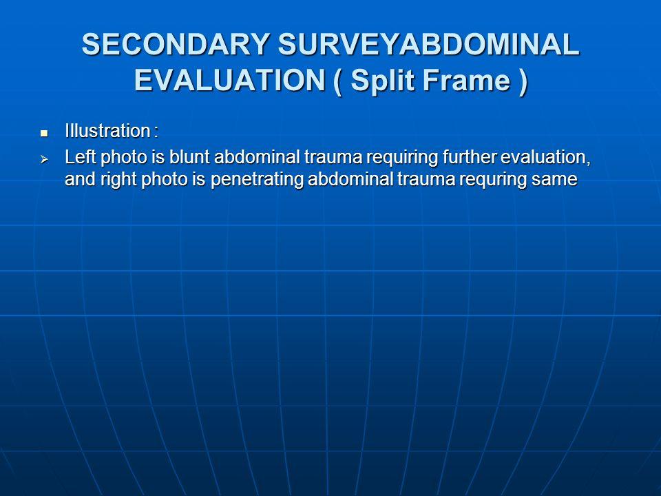 SECONDARY SURVEYABDOMINAL EVALUATION ( Split Frame ) Illustration : Illustration :  Left photo is blunt abdominal trauma requiring further evaluation