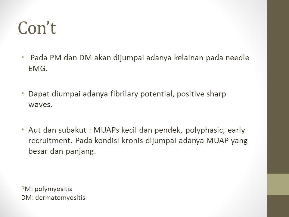 Con't Pada PM dan DM akan dijumpai adanya kelainan pada needle EMG.
