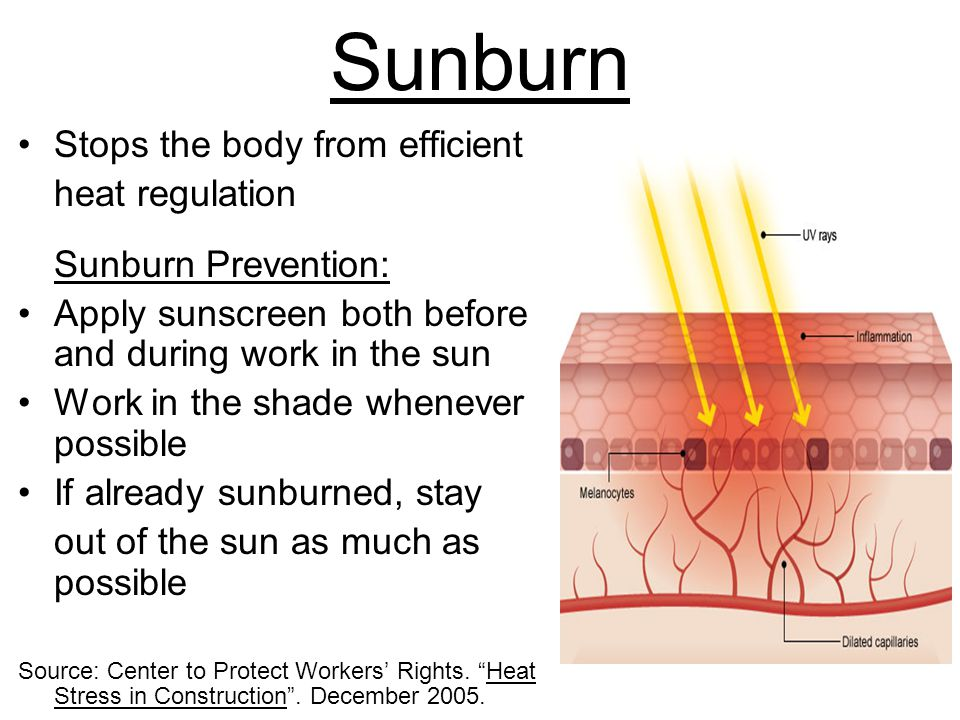 Sunburn Stops the body from efficient heat regulation Sunburn Prevention: Apply sunscreen both before and during work in the sun Work in the shade whenever possible If already sunburned, stay out of the sun as much as possible Source: Center to Protect Workers' Rights.