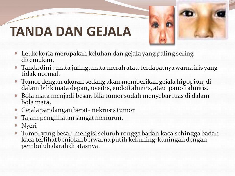 TANDA DAN GEJALA Leukokoria merupakan keluhan dan gejala yang paling sering ditemukan. Tanda dini : mata juling, mata merah atau terdapatnya warna iri