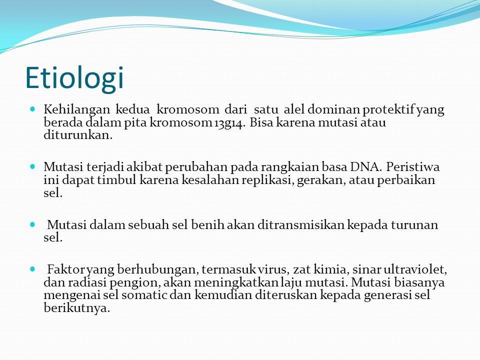 Etiologi Kehilangan kedua kromosom dari satu alel dominan protektif yang berada dalam pita kromosom 13g14. Bisa karena mutasi atau diturunkan. Mutasi