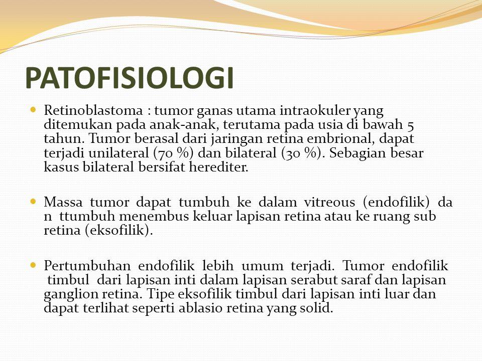 PATOFISIOLOGI Retinoblastoma : tumor ganas utama intraokuler yang ditemukan pada anak-anak, terutama pada usia di bawah 5 tahun. Tumor berasal dari ja