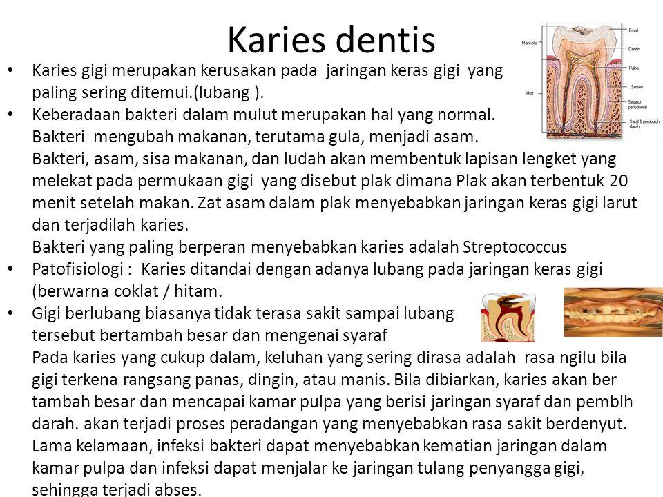 Karies dentis Karies gigi merupakan kerusakan pada jaringan keras gigi yang paling sering ditemui.(lubang ). Keberadaan bakteri dalam mulut merupakan