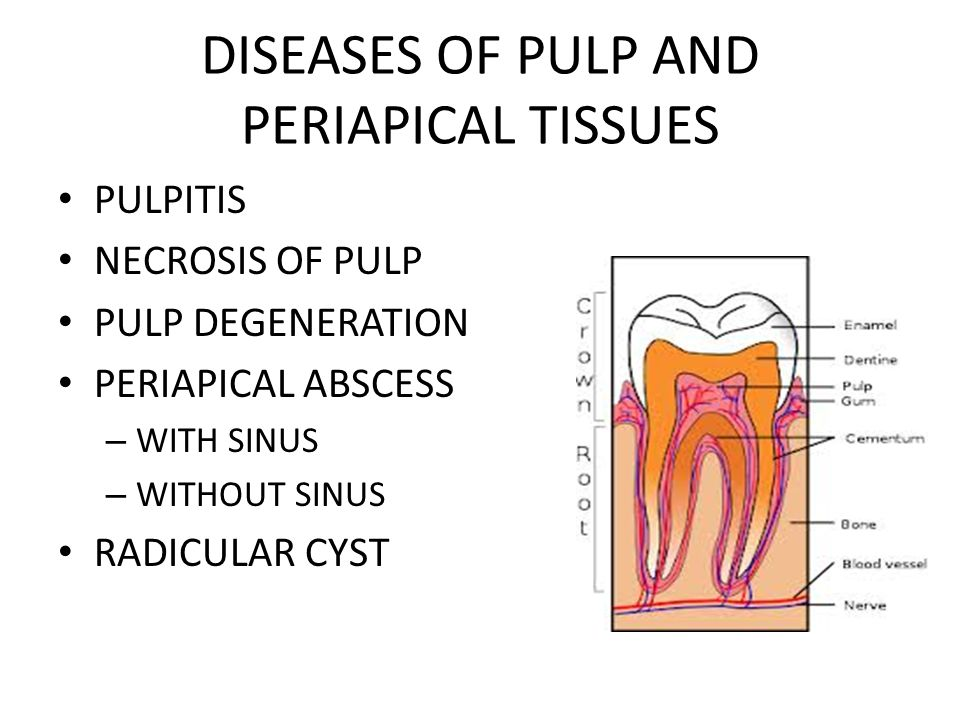 DISEASES OF PULP AND PERIAPICAL TISSUES PULPITIS NECROSIS OF PULP PULP DEGENERATION PERIAPICAL ABSCESS – WITH SINUS – WITHOUT SINUS RADICULAR CYST
