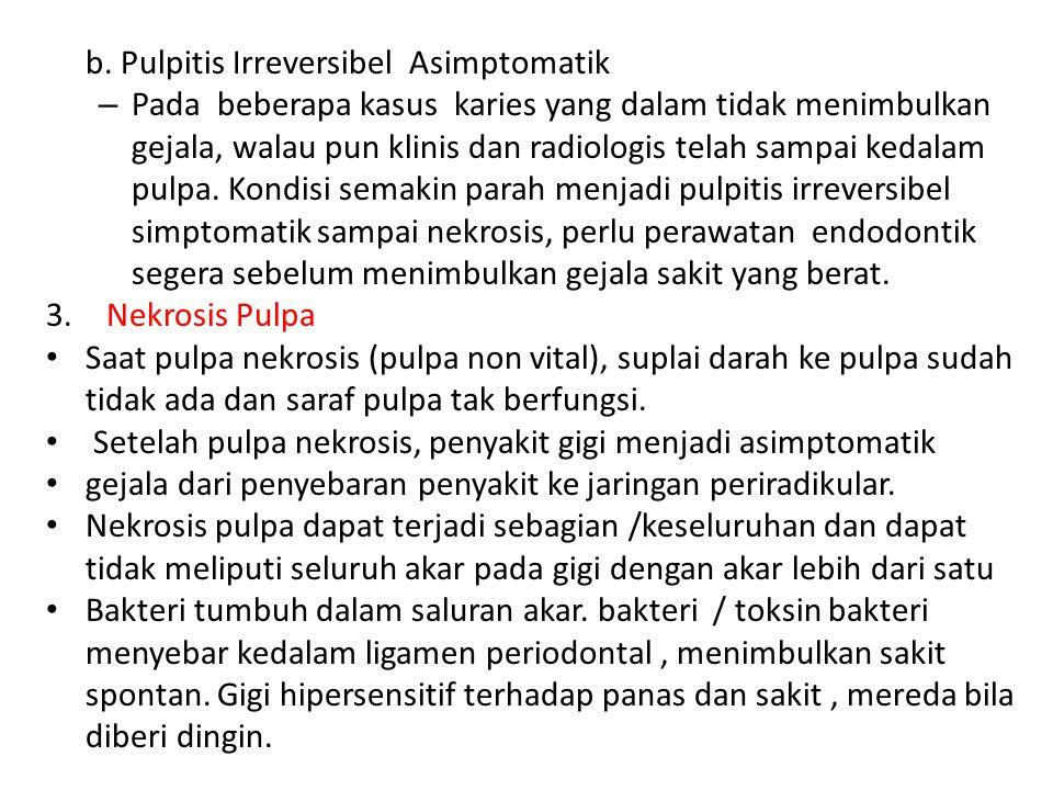 b. Pulpitis Irreversibel Asimptomatik – Pada beberapa kasus karies yang dalam tidak menimbulkan gejala, walau pun klinis dan radiologis telah sampai k