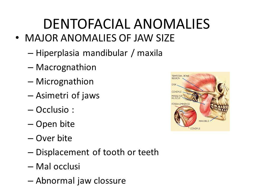 DENTOFACIAL ANOMALIES MAJOR ANOMALIES OF JAW SIZE – Hiperplasia mandibular / maxila – Macrognathion – Micrognathion – Asimetri of jaws – Occlusio : –