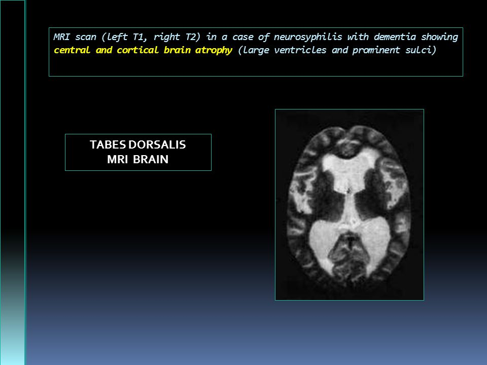MRI scan (left T1, right T2) in a case of neurosyphilis with dementia showing central and cortical brain atrophy (large ventricles and prominent sulci) TABES DORSALIS MRI BRAIN