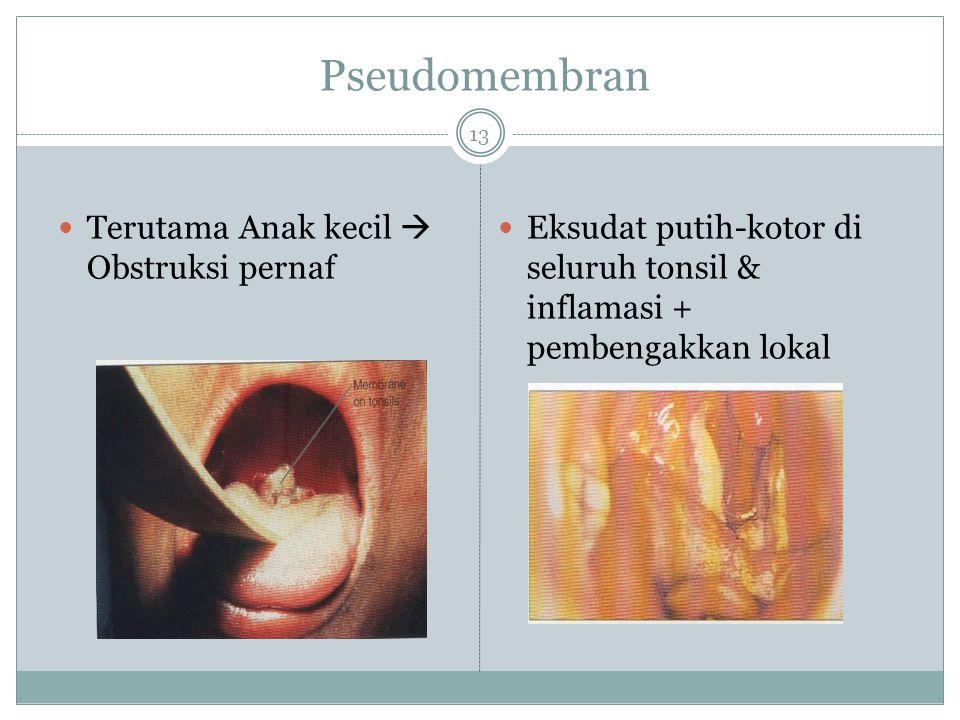 Gejala Klinis Inkubasi 2-7 hari Gejala umum : demam, sore throat, adenopathy cervical Lokal : pseudomembran(eksudat fibrin, lengket, abu2, kuat)  kha