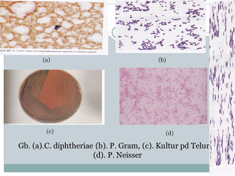 Gb. (a).C. diphtheriae (b). P. Gram, (c). Kultur pd Telurit. (d). P. Neisser (a)(b) (c) (d)