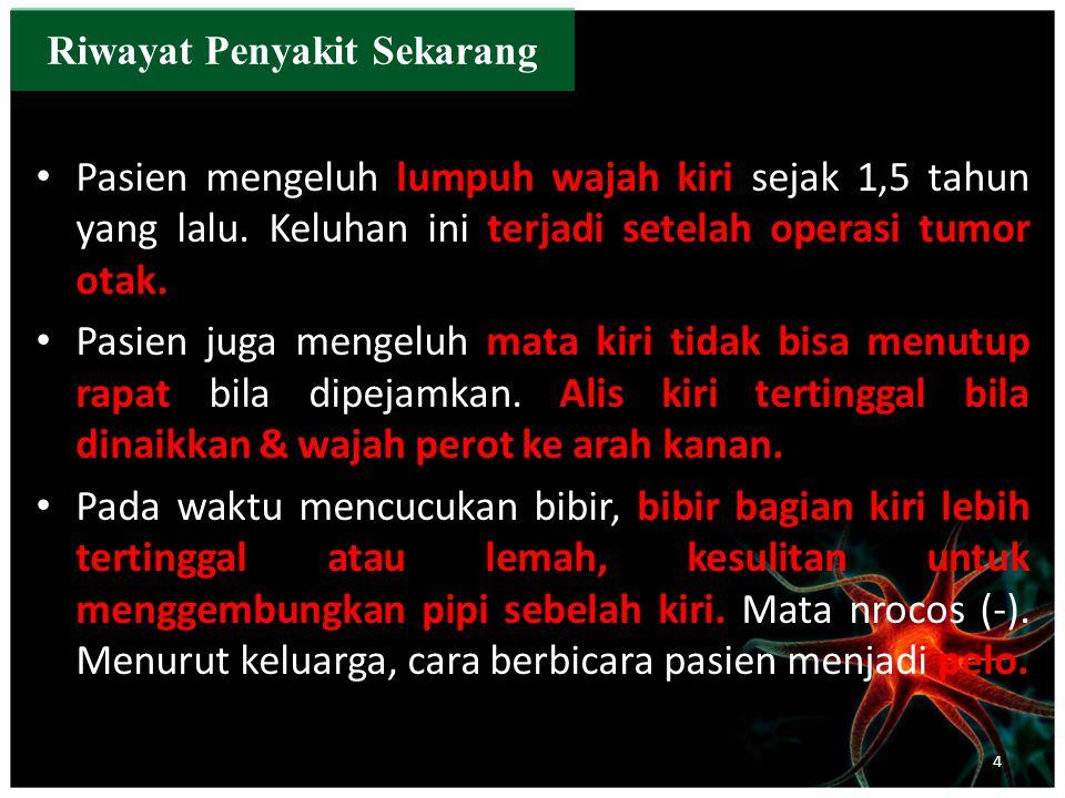 b.Nervus Optikus KananKiri Visus >3/60 >3/60 Kacamata(-) (-) Lapang Pandang dbndbn Warna dbn dbn Funduskopi dbndbn PF cont… 25