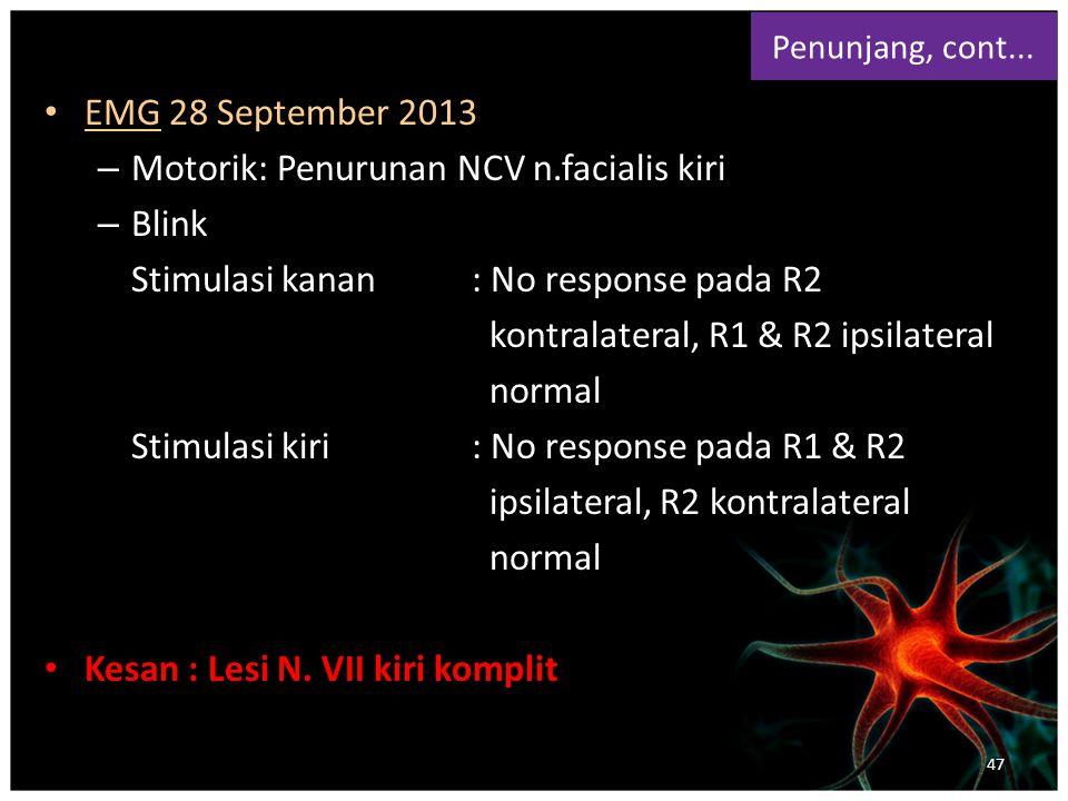 EMG 28 September 2013 – Motorik: Penurunan NCV n.facialis kiri – Blink Stimulasi kanan : No response pada R2 kontralateral, R1 & R2 ipsilateral normal Stimulasi kiri: No response pada R1 & R2 ipsilateral, R2 kontralateral normal Kesan : Lesi N.