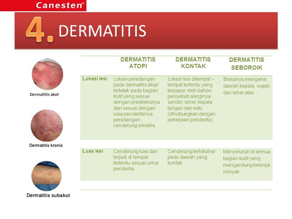 DERMATITIS Dermatitis akut DERMATITIS ATOPI DERMATITIS KONTAK DERMATITIS SEBOROIK Lokasi lesiLokasi peradangan pada dermatitis atopi terletak pada bag