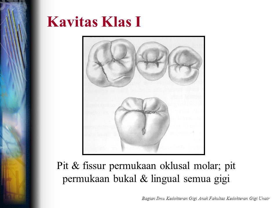 Kavitas Klas I Pit & fissur permukaan oklusal molar; pit permukaan bukal & lingual semua gigi Bagian Ilmu Kedokteran Gigi Anak Fakultas Kedokteran Gig