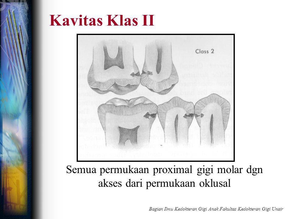 Kavitas Klas II Semua permukaan proximal gigi molar dgn akses dari permukaan oklusal Bagian Ilmu Kedokteran Gigi Anak Fakultas Kedokteran Gigi Unair