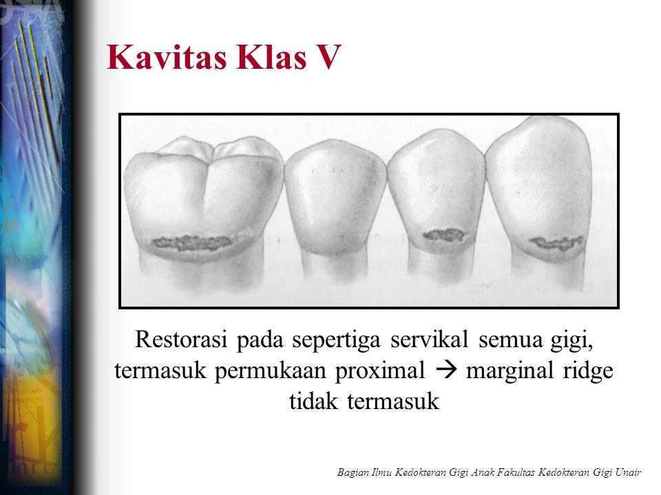 Kavitas Klas V Restorasi pada sepertiga servikal semua gigi, termasuk permukaan proximal  marginal ridge tidak termasuk Bagian Ilmu Kedokteran Gigi A