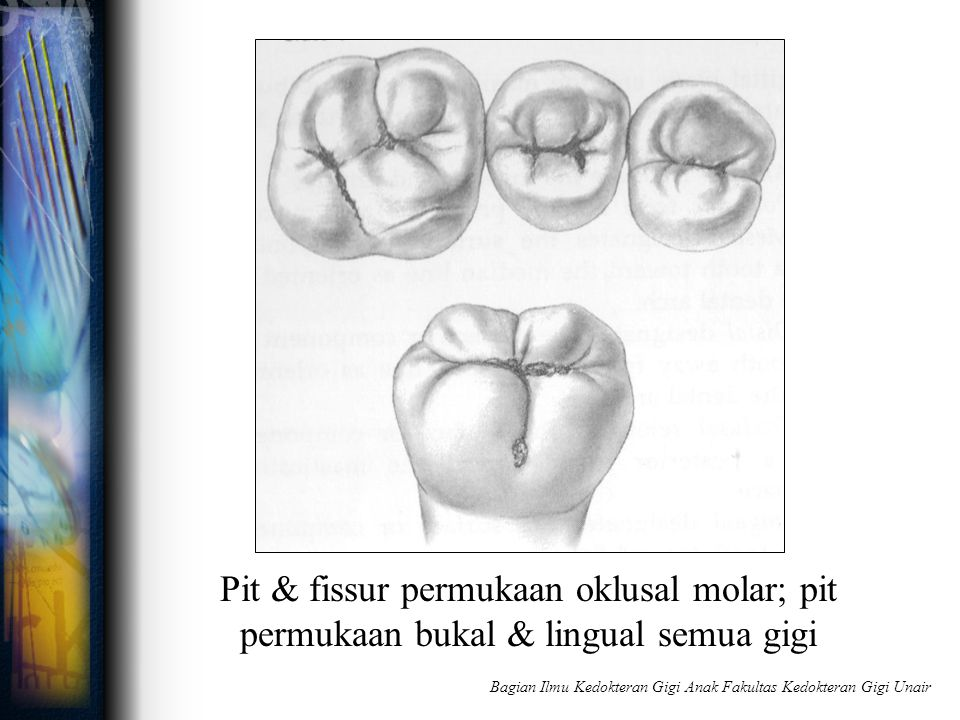 Pit & fissur permukaan oklusal molar; pit permukaan bukal & lingual semua gigi Bagian Ilmu Kedokteran Gigi Anak Fakultas Kedokteran Gigi Unair
