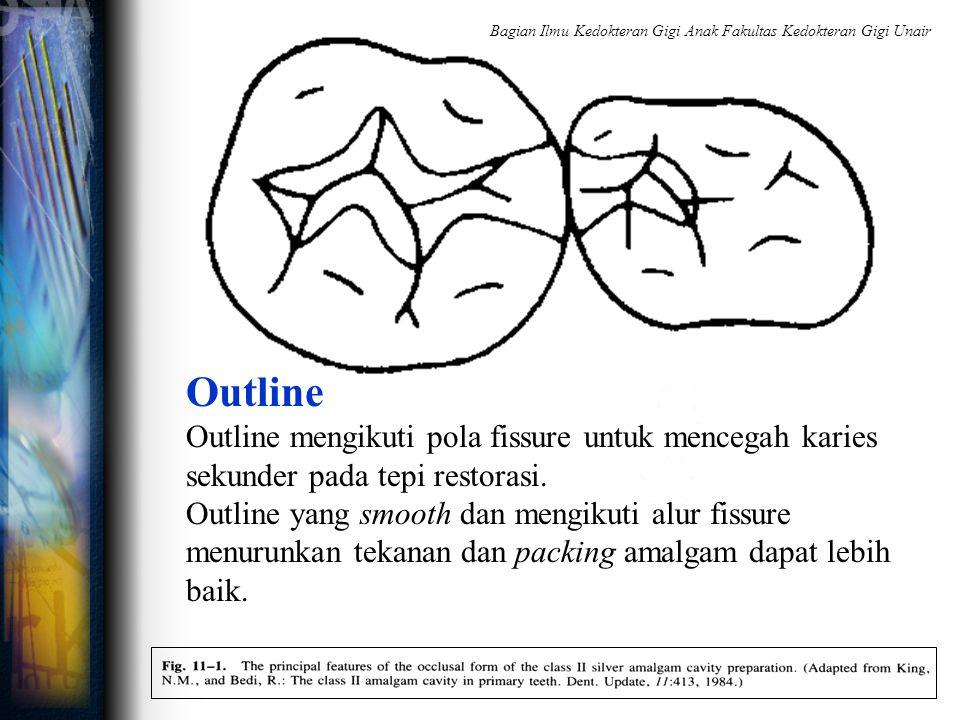 Outline Outline mengikuti pola fissure untuk mencegah karies sekunder pada tepi restorasi. Outline yang smooth dan mengikuti alur fissure menurunkan t