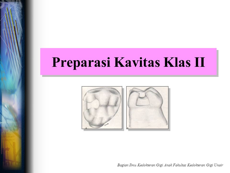 Preparasi Kavitas Klas II Bagian Ilmu Kedokteran Gigi Anak Fakultas Kedokteran Gigi Unair
