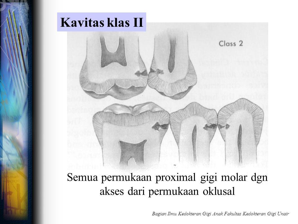 Semua permukaan proximal gigi molar dgn akses dari permukaan oklusal Kavitas klas II Bagian Ilmu Kedokteran Gigi Anak Fakultas Kedokteran Gigi Unair