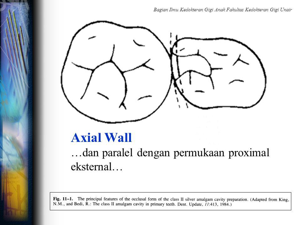 Axial Wall …dan paralel dengan permukaan proximal eksternal… Bagian Ilmu Kedokteran Gigi Anak Fakultas Kedokteran Gigi Unair