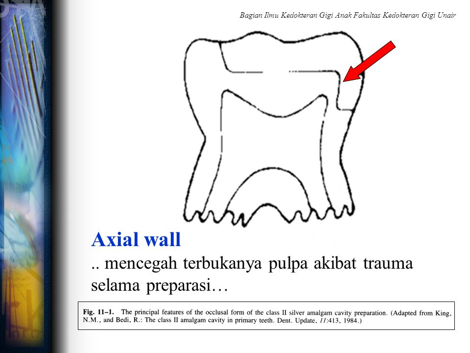 Axial wall.. mencegah terbukanya pulpa akibat trauma selama preparasi… Bagian Ilmu Kedokteran Gigi Anak Fakultas Kedokteran Gigi Unair