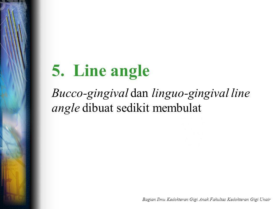 5. Line angle Bucco-gingival dan linguo-gingival line angle dibuat sedikit membulat Bagian Ilmu Kedokteran Gigi Anak Fakultas Kedokteran Gigi Unair