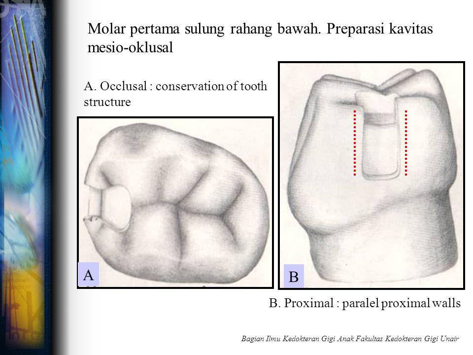 Molar pertama sulung rahang bawah. Preparasi kavitas mesio-oklusal A. Occlusal : conservation of tooth structure B. Proximal : paralel proximal walls