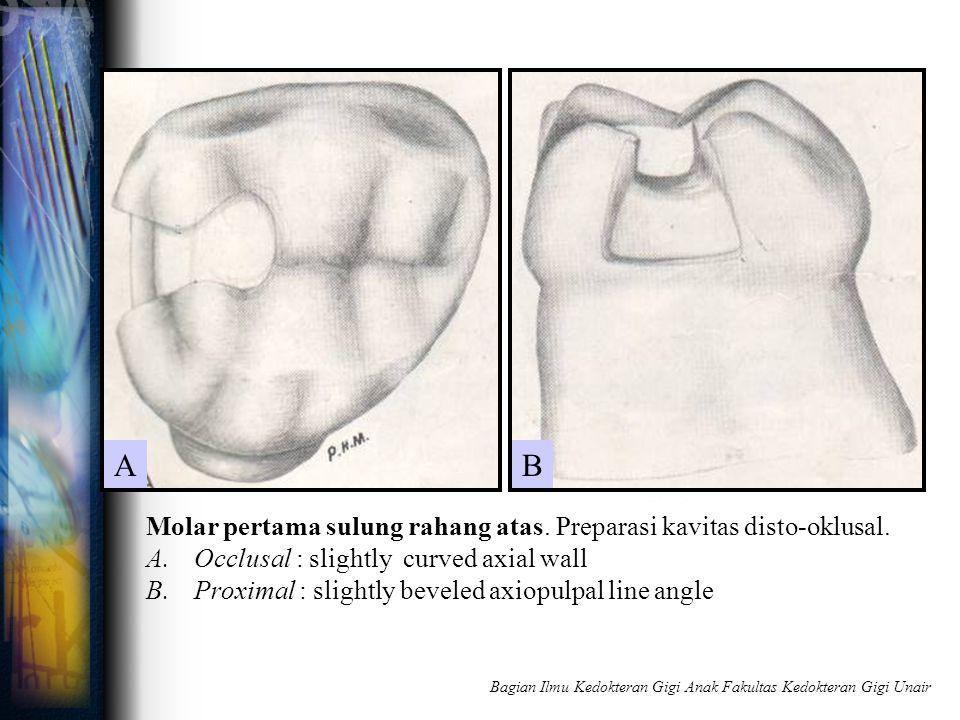 Molar pertama sulung rahang atas. Preparasi kavitas disto-oklusal. A.Occlusal : slightly curved axial wall B.Proximal : slightly beveled axiopulpal li
