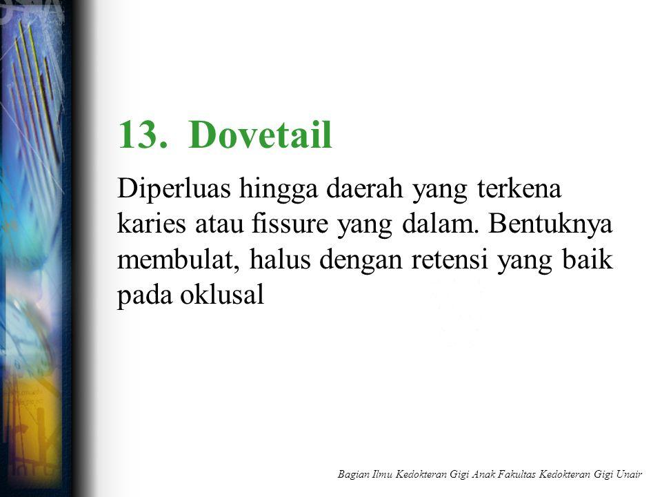 13. Dovetail Diperluas hingga daerah yang terkena karies atau fissure yang dalam. Bentuknya membulat, halus dengan retensi yang baik pada oklusal Bagi