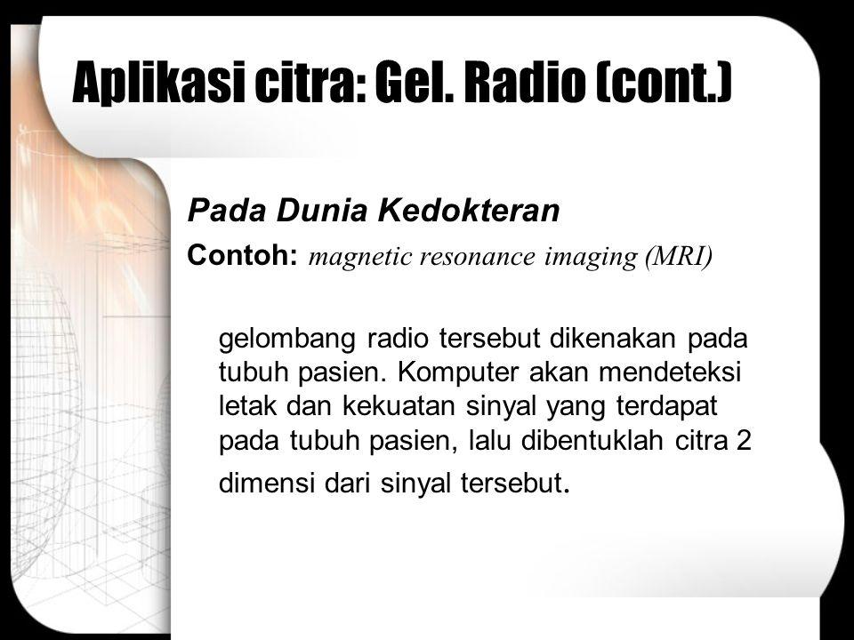 Aplikasi citra: Gel. Radio (cont.) Pada Dunia Kedokteran Contoh: magnetic resonance imaging (MRI) gelombang radio tersebut dikenakan pada tubuh pasien
