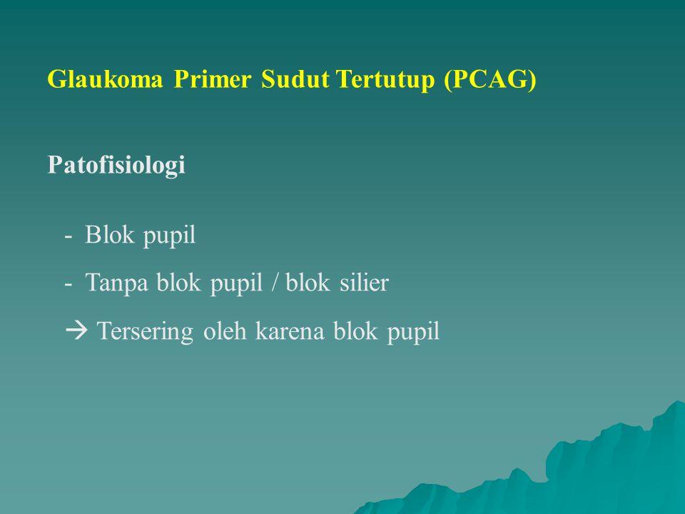 Glaukoma Primer Sudut Tertutup (PCAG) Patofisiologi -Blok pupil -Tanpa blok pupil / blok silier  Tersering oleh karena blok pupil