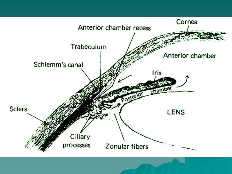KLASIFIKASI GLAUKOMA A.Glaukoma Primer 1.Glaukoma sudut terbuka / Glaukoma kronis simplek 2.Glaukoma sudut tertutup / Glaukoma akut kongestif  berdasarkan Goneoskopi B.Glaukoma Sekunder 1.Katarak 2.Uveitis 3.