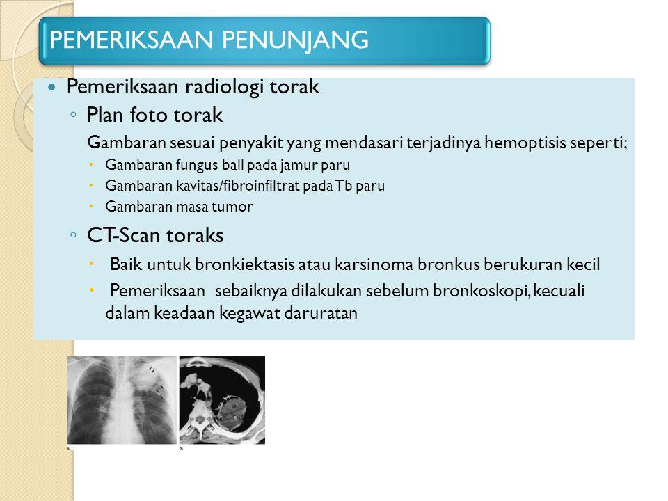 PEMERIKSAAN PENUNJANG Pemeriksaan radiologi torak ◦ Plan foto torak Gambaran sesuai penyakit yang mendasari terjadinya hemoptisis seperti;  Gambaran