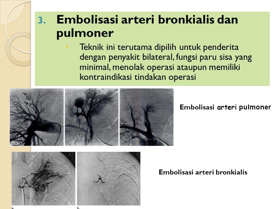 3. Embolisasi arteri bronkialis dan pulmoner  Teknik ini terutama dipilih untuk penderita dengan penyakit bilateral, fungsi paru sisa yang minimal, m